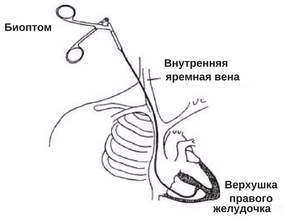 биопсия сердца через яремную вену