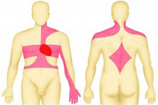 особенности боли при стенокардии