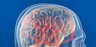 классификация нейроциркуляторной дистонии
