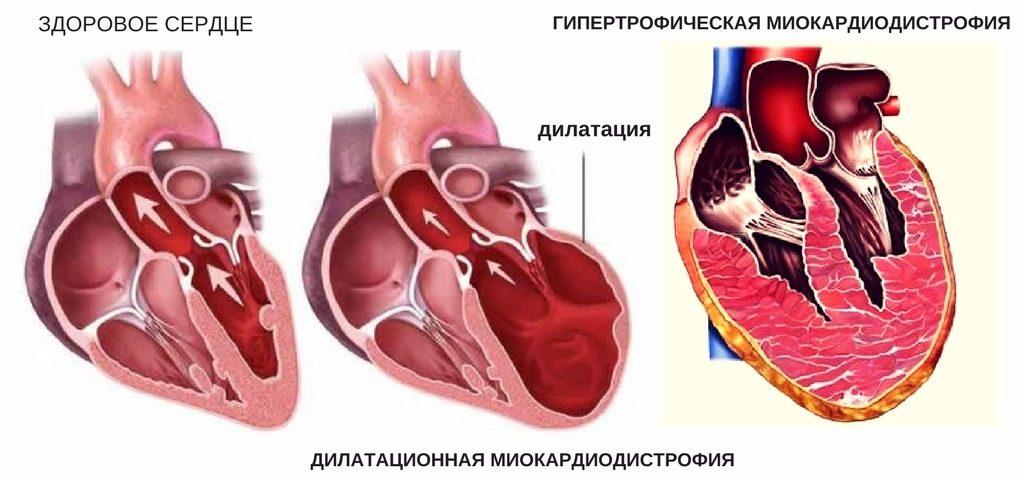 механизм развития кардиомиопатии