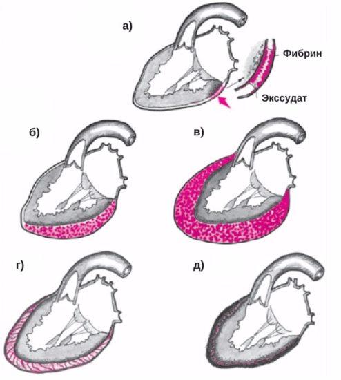 классификация перикардитов