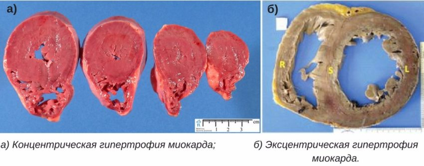 виды гипертрофии миокарда