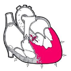 причины гипертрофии левого желудочка
