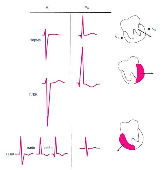 диагностика гипертрофии правого желудочка
