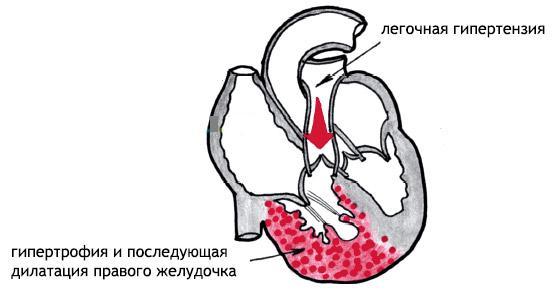причины гипертрофии сердца