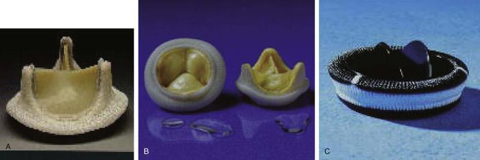 хирургическое лечение недостаточности клапана