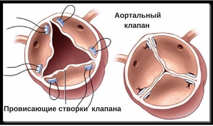 хирургическое лечение стеноза клапана сердца