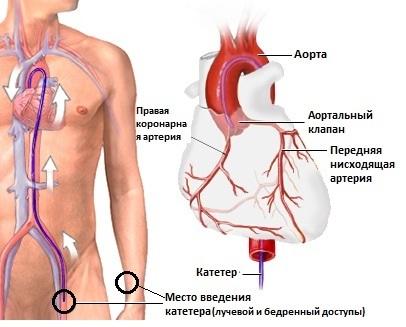 методика проведения коронарографии сердца