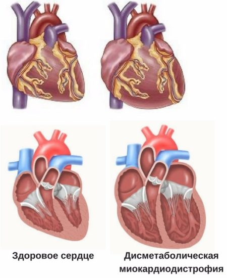 что собой представляет метаболическая кардиомиопатия