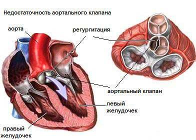 аортальная неостаточность