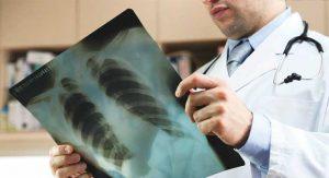 показания для биопсии сердца