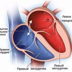пороки сердца
