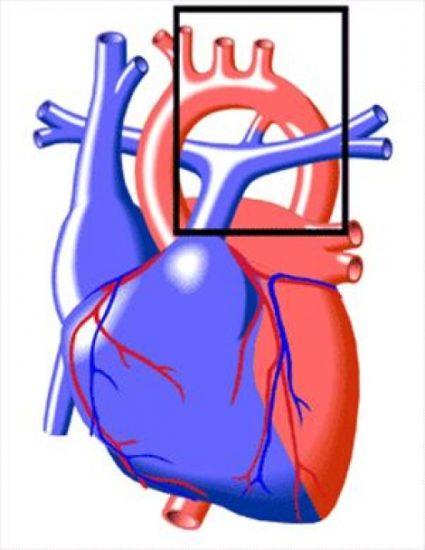 гемодинамика при открытом артериальном протоке у ребенка