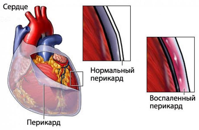 перикард в норме и при перикардите