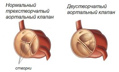 причины аортальной недостаточности