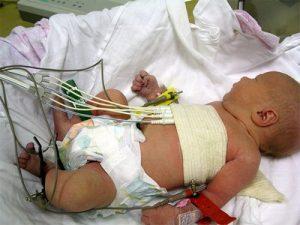 проведение ЭКГ у новорожденного