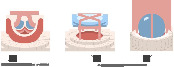 хирургическое лечение пороков клапанов