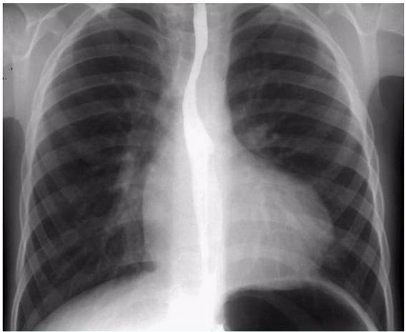 диагностика при тетраде фалло