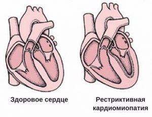 причины и симптомы РКМП