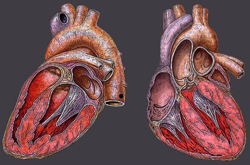 Рестриктивная кардиомиопатия: патогенез, проявления у детей ...