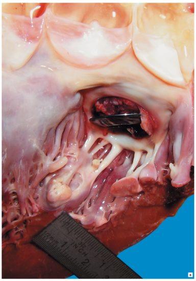 причины септического эндокардита