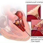 симптомы и классификация септического эндокардита
