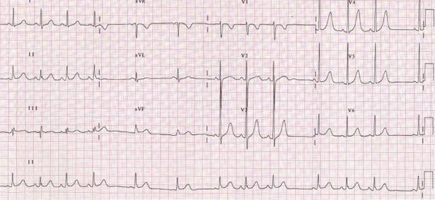 ЭКГ признаки синусовой аритмии у ребенка