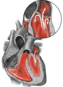 сочетанный порок сердца