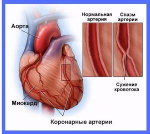 механизм развития боли за грудиной