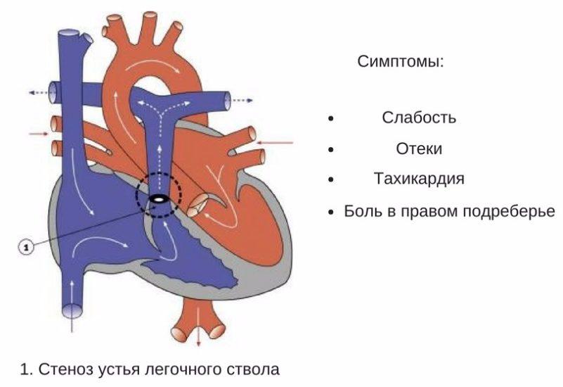 симптомы стеноза легочного ствола