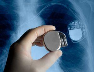 показания к установлению кардиостимулятора