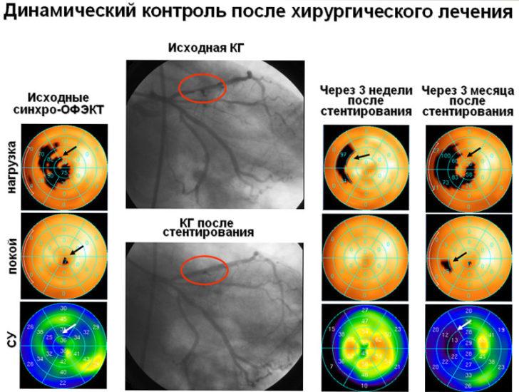 диагностика патологии сердца