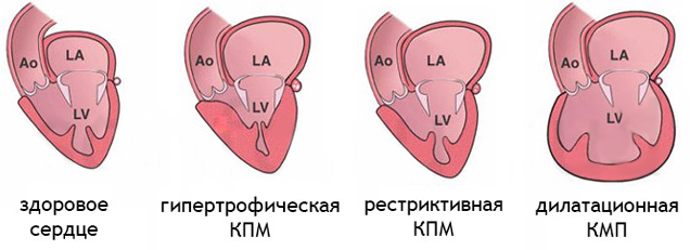 классификация кардиомиопатии