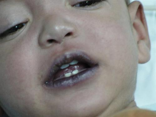 Как укорачивают зубы