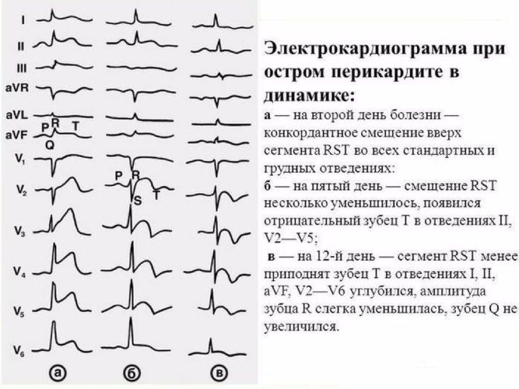 диагностика перикардита
