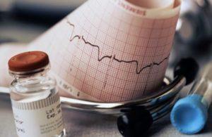 как правильно снимать кардиограмму