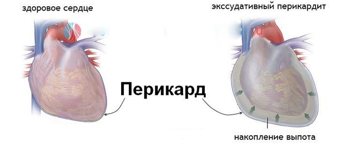 острый перикардит
