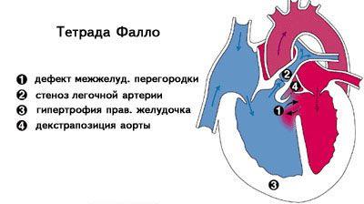 классификация тетрады фалло