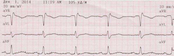 диагностика кардиомиопатии