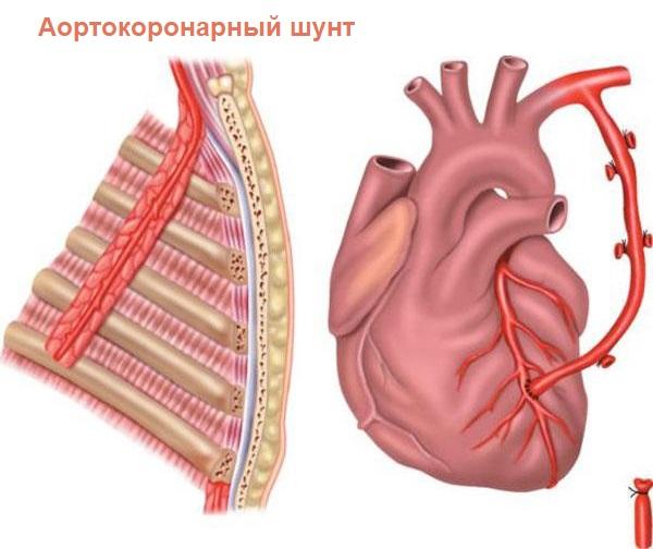 Аортокоронарный шунт в сердце