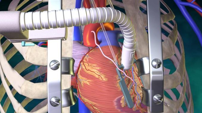 Интракоронарный шунт для сердца