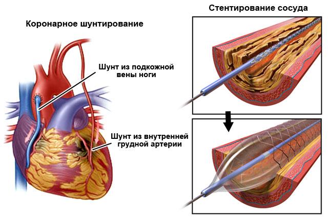 Коронарное шунтирование