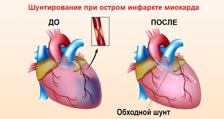 Шунтирование при остром инфаркте миокарда