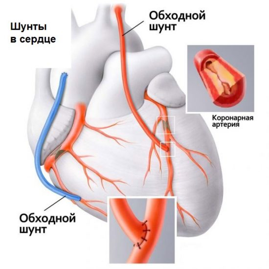 Шунты для сердца