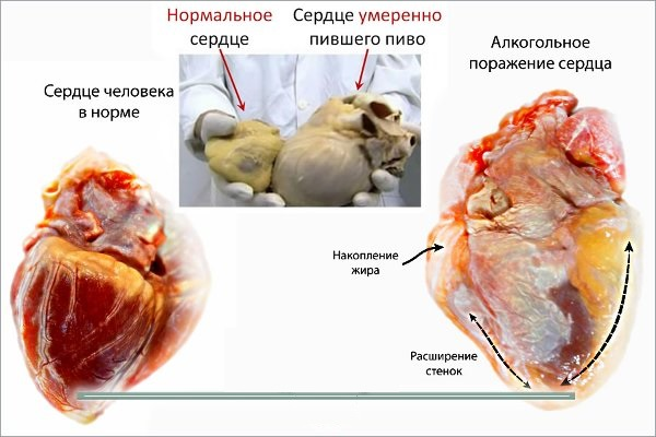 Синдром пивного сердца