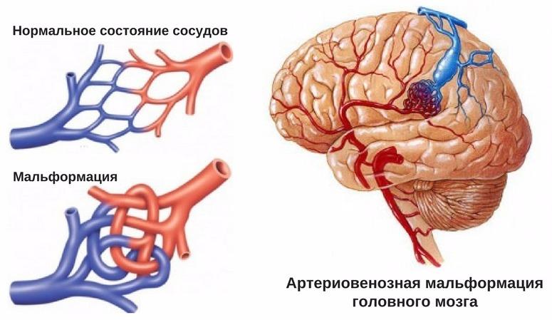 артериовенозная мальформация сосудов