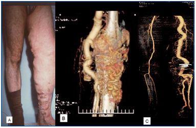 диагностика артериовенозной мальформации