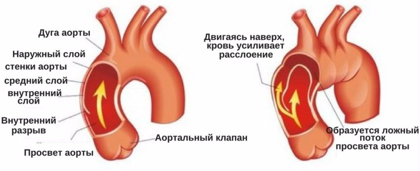 патогенез аневризмы аорты
