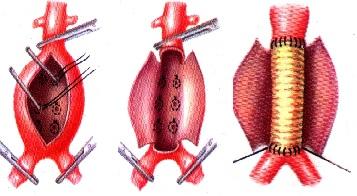 хирургическое лечение аневризмы аорты