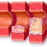 симптомы окклюзии и аневризмы брюшного отдела аорты